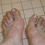 battered feet